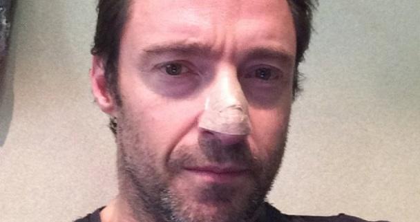 Hugh Jackman en la foto que publicó en Instagram